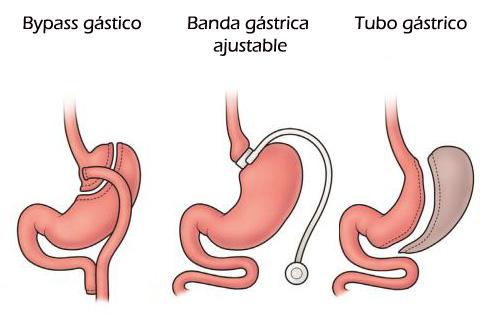 Tratamientos quirúrgicos de la obesidad mórbida - Más información en haciendo click en la imagen
